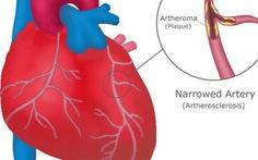 Blog bác sĩ: Bạn có bệnh tim không?
