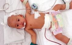 Cứu sống bé gái sơ sinh bị đa dị tật đường tiêu hóa