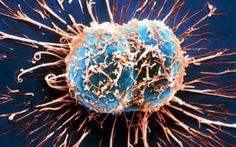 Bộ Y tế bác bỏ nghi vấn có 10 làng ung thư