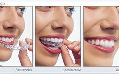 Du lịch TP.HCM để… làm đẹp răng