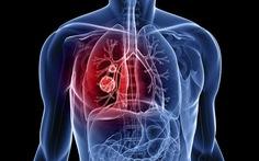 Có thể phát hiện ung thư phổi bằng cách thử máu