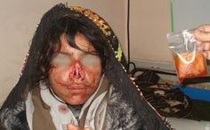 Người Afghanistan phẫn nộ vì chồng cắt mũi vợ