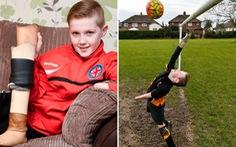 Cậu bé khuyết tay, chân vẫn mê chơi bóng
