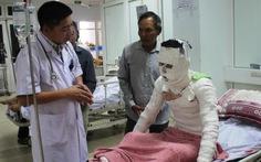 Chuyển thêm 3công nhân vụ nổ ở công ty gỗra Hà Nội