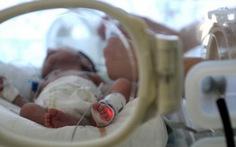Phát hiệnvirútmới gây tổn thương não ở trẻ