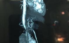 Phình động mạch chủ ở người có thận móng ngựa