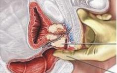 Điều trị phì đại tiền liệt tuyến bằng kỹ thuật mới
