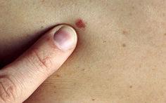 Australia phát triển phương pháp chẩn đoán nhanh ung thư da