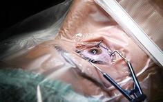 Nghiên cứu của Mỹ: hậu phẫu LASIK không hẳn hoàn hảo