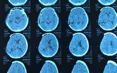 Phẫu thuật sớm giúp cứu sống bệnh nhân xuất huyết não