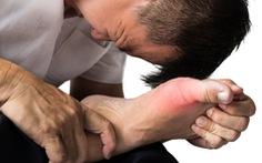 Bệnh gút – những vấn đề cần biết