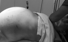 Mổ thành công khối u gần 20kg