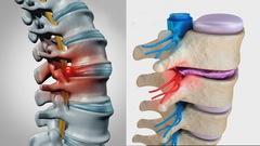 Tìm hiểu bệnh thoát vị đĩa đệm cột sống thắt lưng và cách điều trị
