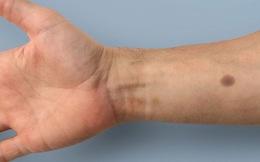 Cấy 'nốt ruồi' dưới da để phát hiện sớm ung thư