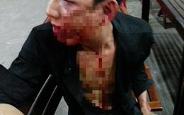 Điều tra vụ nam thanh niên bị đánh hội đồng tại trụ sở khu phố