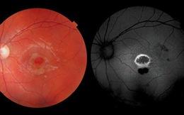 Bé trai Hi Lạp 9 tuổi bị tổn thương mắt vĩnh viễn vì bút laser