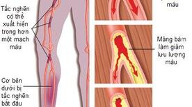 Tắc động mạch ngoại biên: âm thầm nhưng nguy hiểm