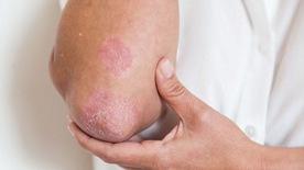 Vài điều cần biết về bệnh vẩy nến