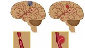 Những điều cần biết về đột quỵ não