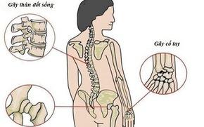 Đừng đợi đến khi bác sĩ kết luận bị loãng xương mới bổ sung canxi