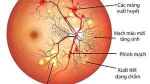 Bệnh võng mạc đái tháo đường - nguyên nhân chính gây mù lòa
