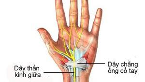 Hội chứng ống cổ tay