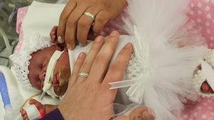 Cưới trong bệnh viện để con sinh non dự đám cưới