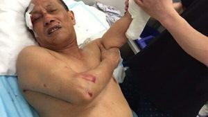 Khánh Hòa xử lý vụ khách Trung Quốc bị đánh tại Nha Trang