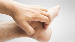 Ngứa lòng bàn tay, bàn chân: có thể là dấu hiệu bệnh gan