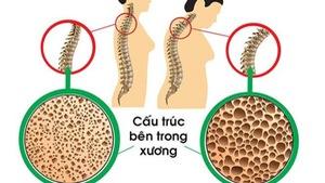 Nhiều nguy cơ dẫn đến loãng xương