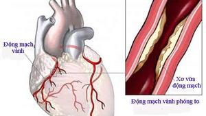 Bệnh động mạch vành và những điều cần biết