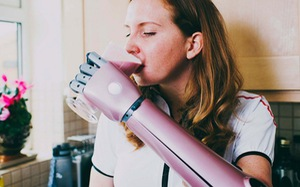 Ứng dụng công nghệ in 3D làm tay giả điện tử cho người khuyết tật