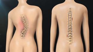 Bước đột phá trong phẫu thuật chữa cong vẹo cột sống có thể giúp hàng triệu người