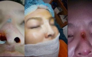 Phẫu thuật thẩm mỹ đừng để chưa đẹp đã chết