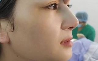 Khỏe đẹp cùng chuyên gia: Mũi hỏng và phương pháp phẫu thuật thẩm mỹ an toàn