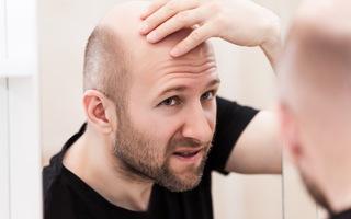 Làm gì để ngăn hói đầu đến sớm?