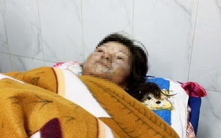 Điều tra nghi án chồng nhậu say, tẩm xăng đốt vợ