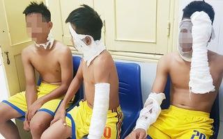3 cầu thủ U14 SLNA nhập viện vì chùm bóng bay phát nổ