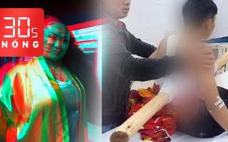 Bản tin 30s Nóng: Nhập viện với khúc cây đâm xuyên người; Vlogger nổi tiếng qua đời vì COVID-19
