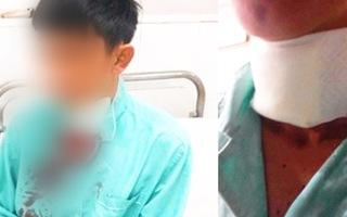 Video: Công an điều tra vụ tài xế GrabBike bị cướp cứa cổ ở Nha Trang