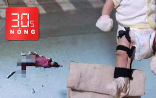Bản tin 30s Nóng: Bé 2 tháng tuổi nghi bị cha đánh gãy chân; Xử phạt chủ tịch xã đánh bài ăn tiền