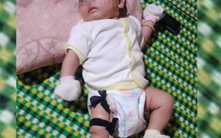 Công an vào cuộc vụ cha 'nghi đánh gãy chân' con gái 2 tháng tuổi