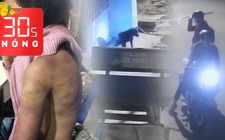 Bản tin 30s Nóng: Bé gái 12 tuổi bị bạo hành, cưỡng bức; Phải triệt 'cẩu tặc' manh động