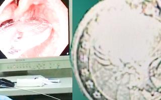 Video: Cấp cứu bé gái 6 tuổi trước nguy cơ nghẹt thở vì nuốt đồng xu