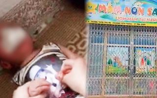 Video: 'Cô giáo' nhét giẻ vào miệng bé ở cơ sở mầm non đang là sinh viên