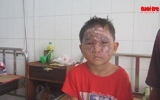 Bé trai 7 tuổi bị bỏng do chơi lồng đèn