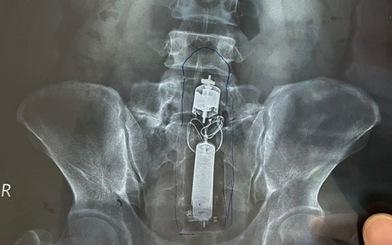 Nam bệnh nhân nhập viện cấp cứu vì kẹt đồ chơi tình dục trong trực tràng