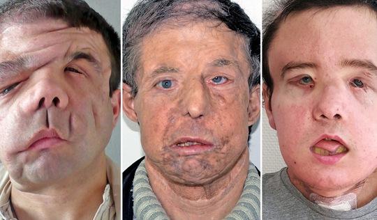 Người đàn ông có 3 khuôn mặt duy nhất trên thế giới