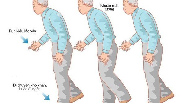 Những điều cần biết về bệnh Parkinson