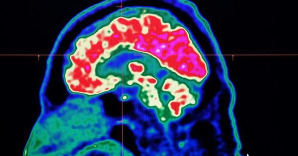 Não bộ làm tăng hay giảm cơn đau như thế nào?